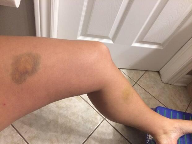Kocsis took photos of her bruises as evidence. She says she took this one almost a week after the assault.
