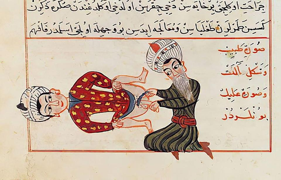 """<div class=""""inline-image__caption""""><p>A medical illustration by Sharaf ad-Din depicting an operation for castration, c. 1466</p></div> <div class=""""inline-image__credit"""">Public Domain</div>"""