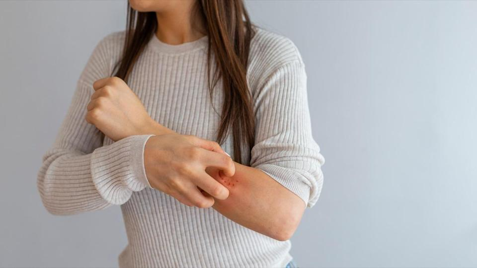 young woman scratching her arm with allergy rash