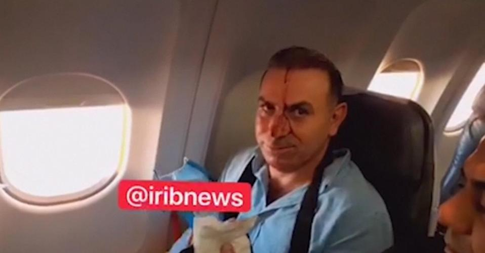 Image: Close-up of a passenger sitting by window with blood on his face in a screenshot from footage purportedly shot by a reporter for Iranian state TV. (IRIB via The Associated Press)
