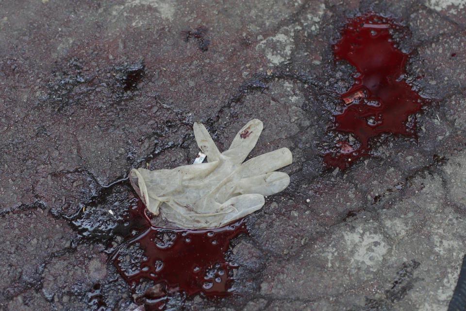 Blood covers a street after a police operation targeting drug traffickers in the Jacarezinho favela of Rio de Janeiro, Brazil, Thursday, May 6, 2021. At least 25 people died including one police officer and 24 suspects, according to the press office of Rio's civil police. (AP Photo/Silvia Izquierdo)