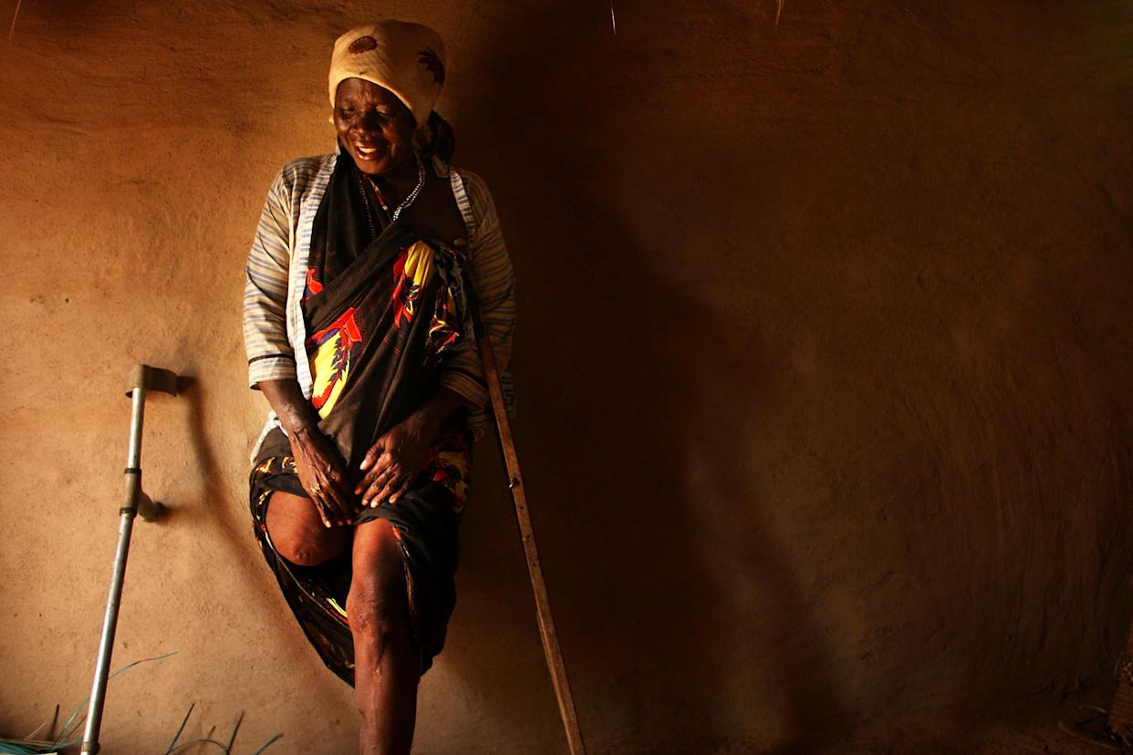 Mako Bakar Bakaro, who lost a leg in fighting in Mogadishu, Somalia in 2008, stands against the wall of her hut August 21, 2009 in a refugee complex in Dadaab, Kenya.