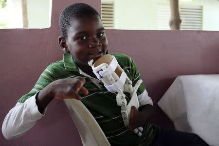 Handicapped Haitian boy Stevenson Joseph holds the 3D-printed prosthetic hand that he is learning to use in Santo