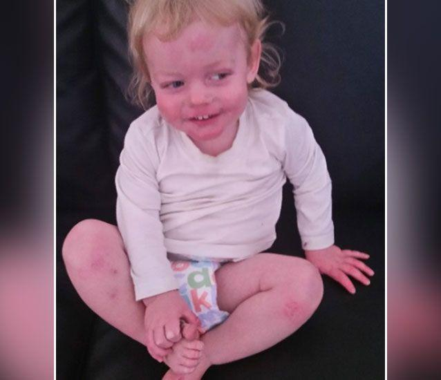 The toddler now faces a 12-month wait to have a proper diagnosis of his condition. Source: GoFundMe/ Chelsea Jenkins