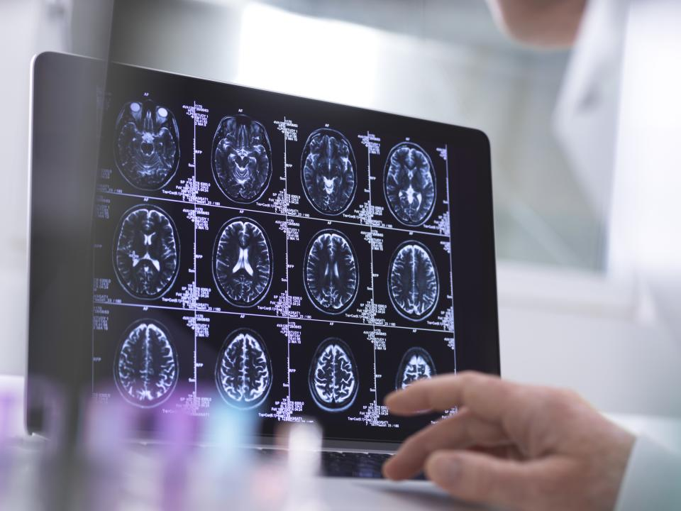 Human brain scan being analysed in a neurology clinic.