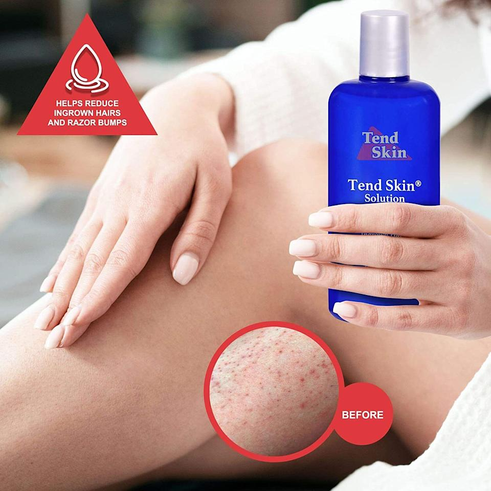 """Take care of razor bumps, ingrown hairs, and razor burn with this solution, so you don't have to spend hours psyching yourself up to shave knowing that you're gonna be dodging sensitive spots on your skin.<br /><br /><strong>Promising review</strong>: """"I'm not one to leave a review about many products but I saw a review on this product that made me buy it and I thought it wasn't only fair to pay it forward!<strong>I've dealt with horrendous ingrown hairs for years! I've tried everything to minimize them, expensive wax packages and expensive serums and creams, plucking, not shaving — you name it I tried it.</strong>This product has literally put everything I've tried to shame! For the price too! it was so worth it! I've been using it for about a month every day after I get out of the shower (I saw someone say they put it in a spray bottle to get full use of the product rather than it seeping into a cotton ball 10/10 would recommend)<strong>I haven't gotten an ingrown since and the ones I had healed!</strong>The smell is kind of strong but so are the results.<strong>I also have pretty sensitive skin and I was worried about using it after I shave/wax, burns a lil bit but it didn't cause a flare-up.</strong>Can't wait to not be insecure at the beach this summer!"""" —<a href=""""https://www.amazon.com/gp/customer-reviews/RNDOI7YOQEUKE?&linkCode=ll2&tag=huffpost-bfsyndication-20&linkId=35947088d4ea5fbb3d0ed2a23dc19fc3&language=en_US&ref_=as_li_ss_tl"""" target=""""_blank"""" rel=""""nofollow noopener noreferrer"""" data-skimlinks-tracking=""""5738624"""" data-vars-affiliate=""""Amazon"""" data-vars-href=""""https://www.amazon.com/gp/customer-reviews/RNDOI7YOQEUKE?tag=bfemmalord-20&ascsubtag=5738624%2C22%2C35%2Cmobile_web%2C0%2C0%2C0"""" data-vars-keywords=""""cleaning"""" data-vars-link-id=""""0"""" data-vars-price="""""""" data-vars-retailers=""""Amazon"""">Jess<br /><br /></a><strong>Get it from Amazon for<a href=""""https://www.amazon.com/Tend-Skin-Solution-Unsightly-Ingrown/dp/B001ECQ7G4?&linkCode=ll1&tag=huffpost-bfsyndication-20&"""