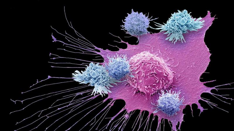 A false-coloured image of T-cells around a breast cancer cell under a scanning electron microscope (SEM). Image courtesy: Gschmeissner/Science