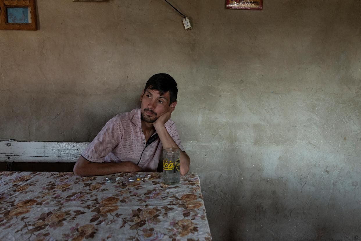 Cristian Molina takes his tuberculosis medication at his house in the shantytown of Luján in Buenos Aires, Argentina. (Photo: Magali Druscovich/Reuters)