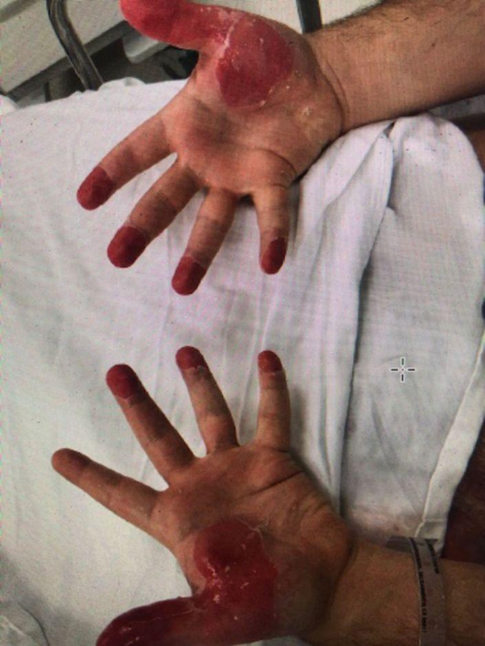Pictured are burns on a man's fingertips. Source: USA Today