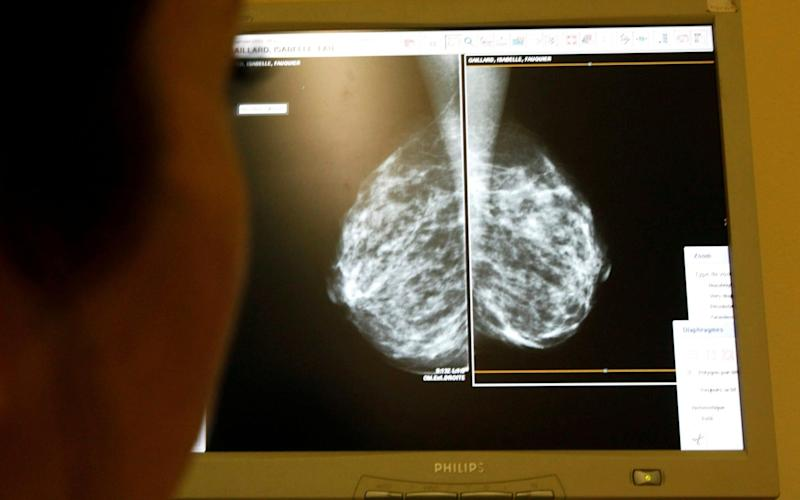 A woman undergoes a mammograms, a special type of X-ray of the breasts -  REUTERS