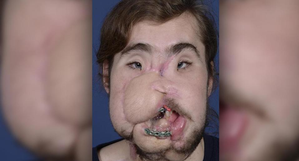 Cameron Underwood was left without the majority of his lower jaw, teeth, and nose, and with significantly impaired eyesight, speech, and mouth function. (Photo: NYU Langone Health)