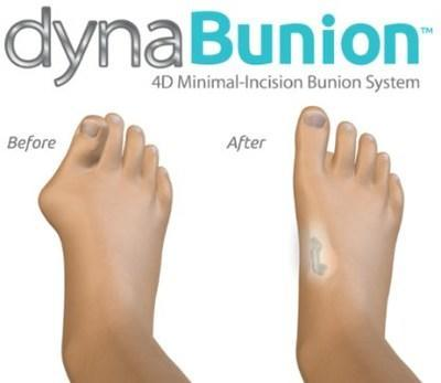 DynaBunion 4D Minimal Incision Bunion Correction - Before & After