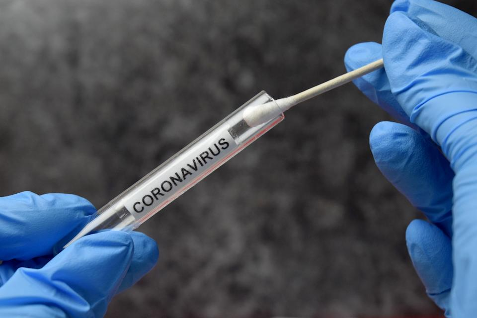 Dozens of animals who are 'regularly in contact with people' worldwide 'may be susceptible to the coronavirus', research suggests. (Getty Images)