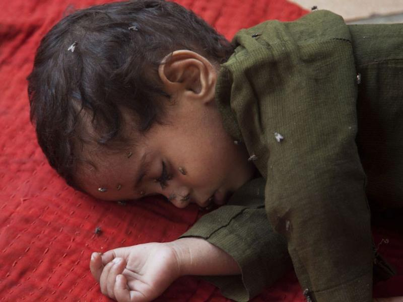 A child waiting for medical aid for suspected heatstroke at a children's hospital in Karachi: AP