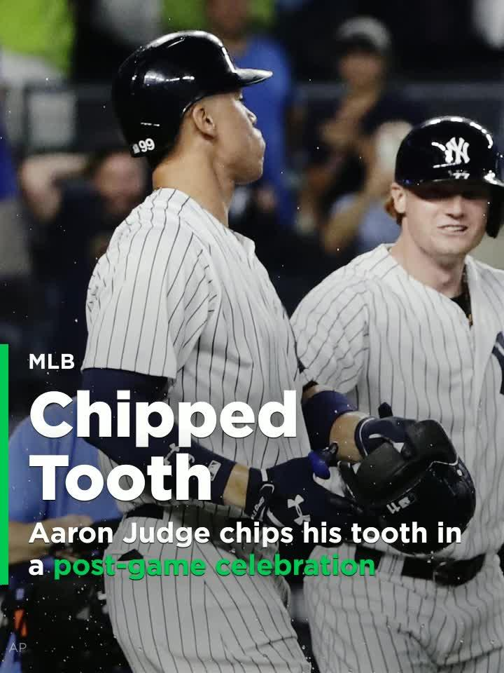 New York Yankees rookie slugger Aaron Judge chipped his tooth on a teammate's batting helmet during a celebration after the team's win over the Tampa Bay Rays.