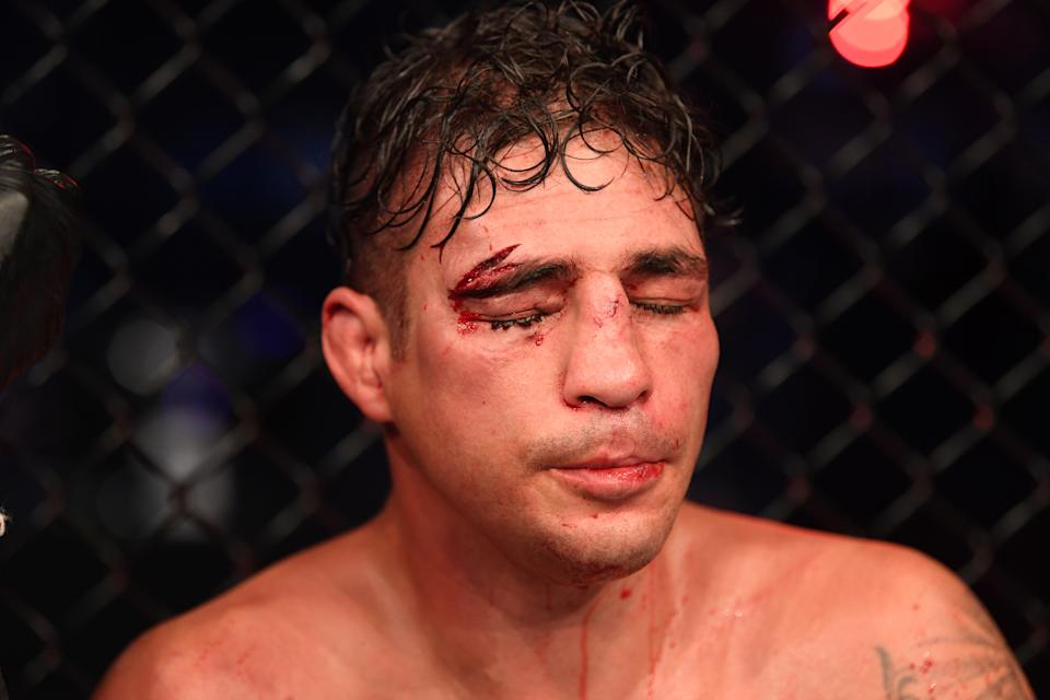 Diego Sanchez has some things to say about the UFC. (Photo by Josh Hedges/Zuffa LLC)