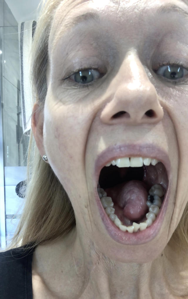 Karen was shocked to discover the persistent ulcer on her tongue was due to underlying tongue cancer [Photo: Caters]