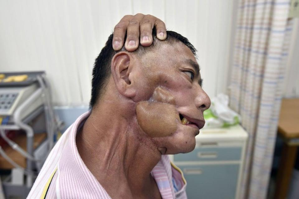 File A picture from 2017 shows Chen Yung-an, who had oral cancer, doing rehabilitation exercises at a recovery centre in Taipei (AFP via Getty Images)