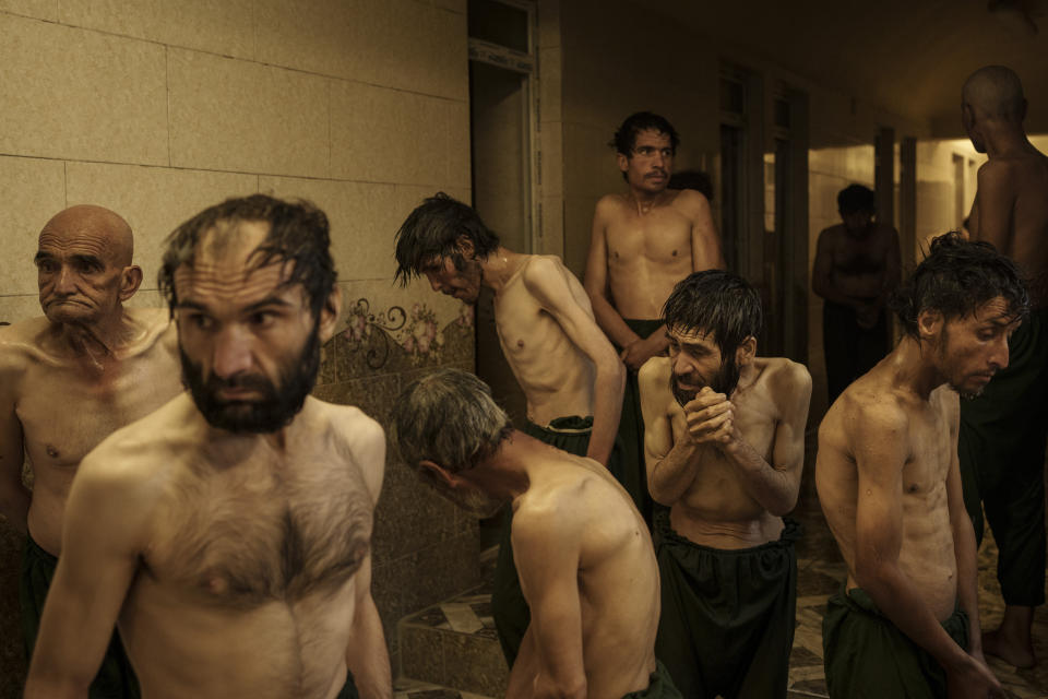 Drug users detained during a Taliban raid wait to be shaved after arriving at Avicenna Medical Hospital for Drug Treatment in Kabul, Afghanistan, Friday, Oct. 1, 2021. In the hospital, patients, totalling 700, float around the halls like ghosts. Some say they aren't being fed enough. Doctors said hunger is part of the withdrawal process. (AP Photo/Felipe Dana)