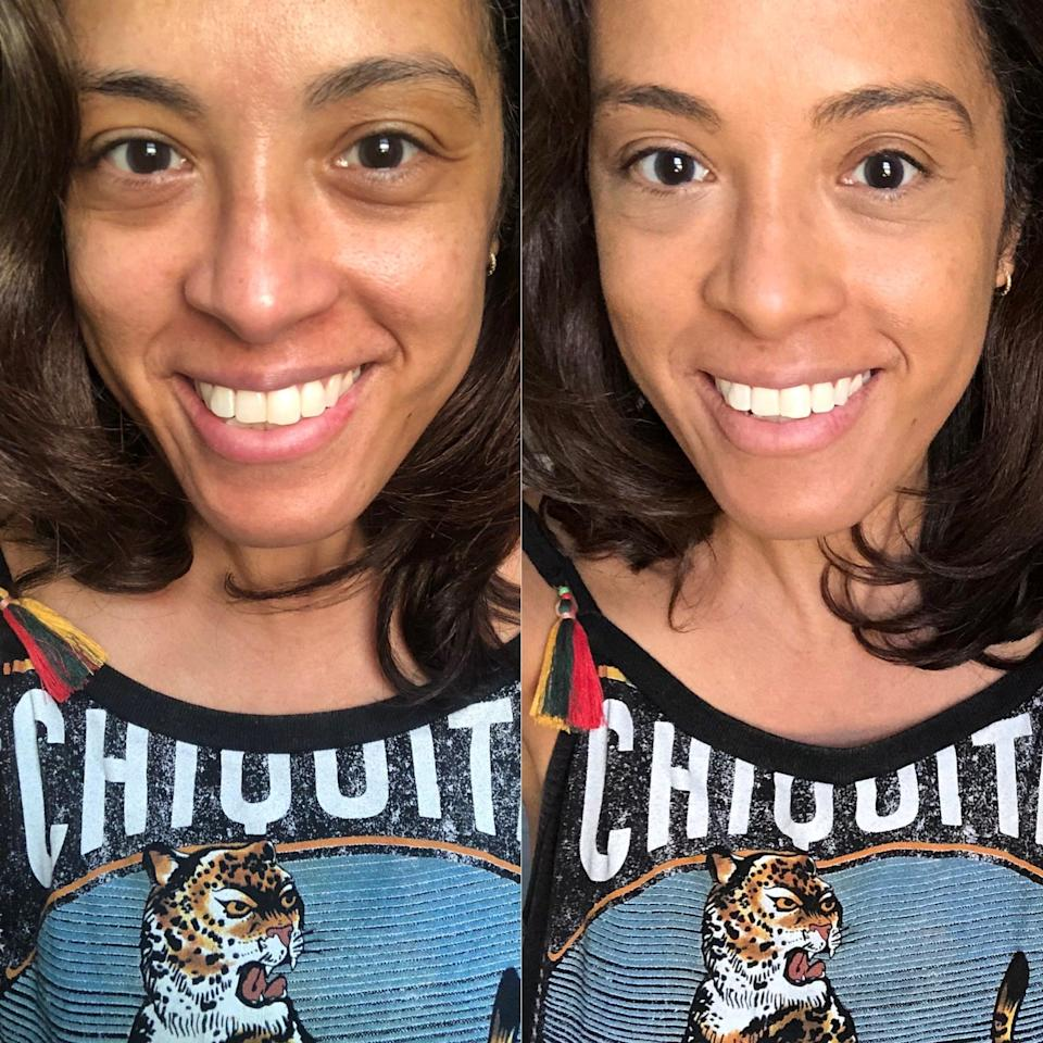"""<p>In my """"before"""" picture on the left, I'm not wearing any makeup or skin-care products and, in my """"after,"""" I'm only wearing this <a href=""""https://www.popsugar.com/buy/Alpyn-Beauty-PlantGenius-Line-Filling-Eye-Balm-Bakuchiol-586303?p_name=Alpyn%20Beauty%20PlantGenius%20Line-Filling%20Eye%20Balm%20with%20Bakuchiol&retailer=sephora.com&pid=586303&price=62&evar1=bella%3Aus&evar9=47586156&evar98=https%3A%2F%2Fwww.popsugar.com%2Fphoto-gallery%2F47586156%2Fimage%2F47586191%2FSide-by-Side-Results&list1=beauty%20products%2Csephora%2Ceye%20cream%2Cbeauty%20shopping%2Cbeauty%20review%2Cskin%20care%2Calpyn%20beauty&prop13=api&pdata=1"""" class=""""link rapid-noclick-resp"""" rel=""""nofollow noopener"""" target=""""_blank"""" data-ylk=""""slk:Alpyn Beauty PlantGenius Line-Filling Eye Balm with Bakuchiol"""">Alpyn Beauty PlantGenius Line-Filling Eye Balm with Bakuchiol</a> ($62), their <a href=""""https://www.popsugar.com/buy/Alpyn-Beauty-PlantGenius-Brightening-Survival-Serum-548868?p_name=Alpyn%20Beauty%20PlantGenius%20Brightening%20Survival%20Serum&retailer=sephora.com&pid=548868&price=68&evar1=bella%3Aus&evar9=47586156&evar98=https%3A%2F%2Fwww.popsugar.com%2Fphoto-gallery%2F47586156%2Fimage%2F47586191%2FSide-by-Side-Results&list1=beauty%20products%2Csephora%2Ceye%20cream%2Cbeauty%20shopping%2Cbeauty%20review%2Cskin%20care%2Calpyn%20beauty&prop13=api&pdata=1"""" class=""""link rapid-noclick-resp"""" rel=""""nofollow noopener"""" target=""""_blank"""" data-ylk=""""slk:Alpyn Beauty PlantGenius Brightening Survival Serum"""">Alpyn Beauty PlantGenius Brightening Survival Serum</a> ($68), <a href=""""https://www.popsugar.com/buy/Hourglass-Vanish-Airbrush-Concealer-537426?p_name=Hourglass%20Vanish%20Airbrush%20Concealer&retailer=sephora.com&pid=537426&price=34&evar1=bella%3Aus&evar9=47586156&evar98=https%3A%2F%2Fwww.popsugar.com%2Fphoto-gallery%2F47586156%2Fimage%2F47586191%2FSide-by-Side-Results&list1=beauty%20products%2Csephora%2Ceye%20cream%2Cbeauty%20shopping%2Cbeauty%20review%2Cskin%20care%2Calpyn%20beauty&prop13=api&pdata=1"""" class=""""l"""