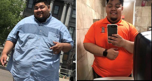 PHOTO: Gus Pena, of Texas, has lost more than 100 pounds. (Courtesy Abe Pena)