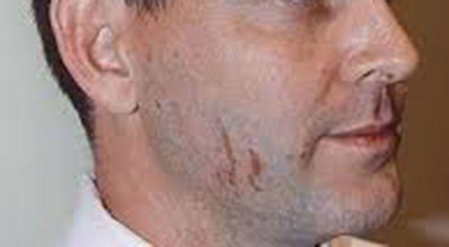 The scratches that appeared on Baden-Clay's face. Source: Supplied.
