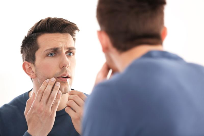 Man sues date for $237k after she failed to tell him she had a cold sore. Source: Getty