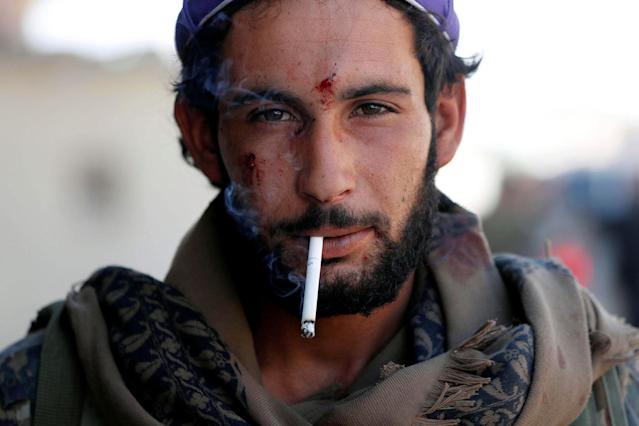 <p>A member of Syrian Democratic Forces who was wounded during a battle with Islamic State militants smokes a cigarette in Raqqa, Syria , Oct. 1, 2017. (Photo: Erik De Castro/Reuters) </p>