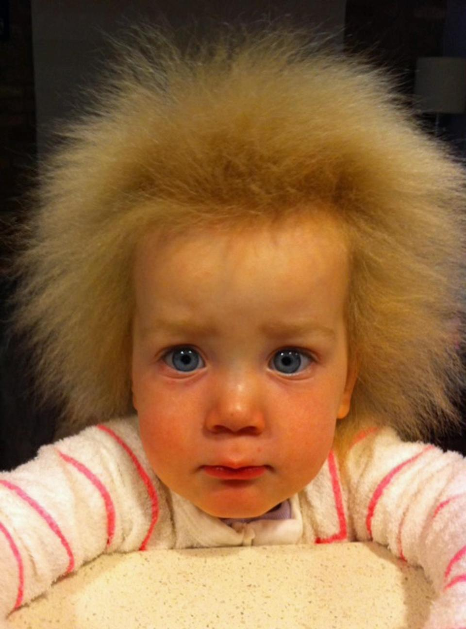 Meet the little girl who suffers from a rare genetic condition which means her hair constantly sticks up [Photo: Caters]