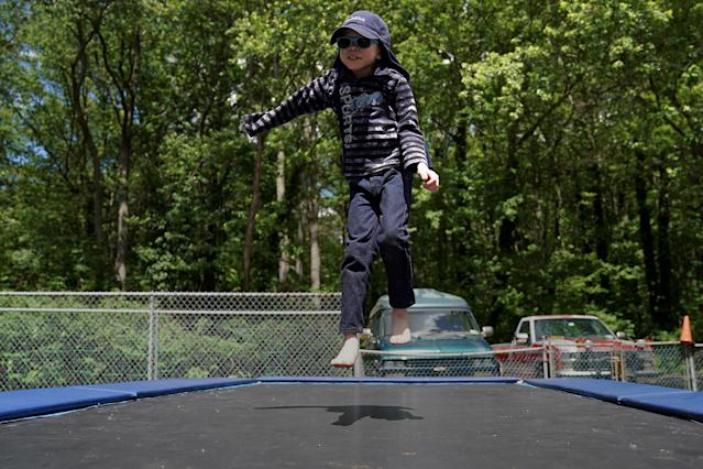 <p>Baraka Lusambo, 7, a Tanzanian with albinism who had an arm chopped off in a witchcraft-driven attack, jumps on a trampoline in the Staten Island borough of New York City, June 3, 2017. (Photo: Carlo Allegri/Reuters) </p>