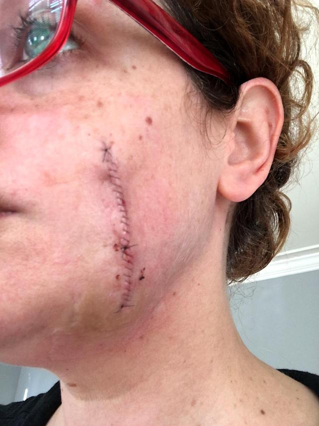 Tracy Callahan recently had melanoma removed from her face, leaving her with a large incision. (Photo: Tracy Callahan)