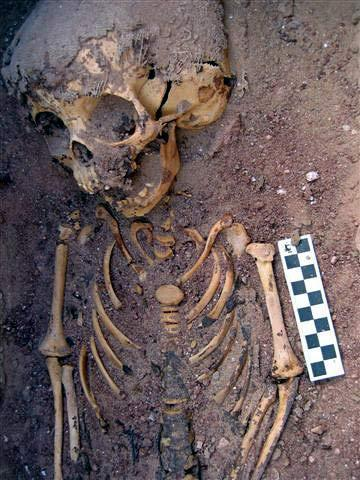 Close-up of upper body of burial 519, the 2,000-year-old remains of the abused toddler in Egypt.