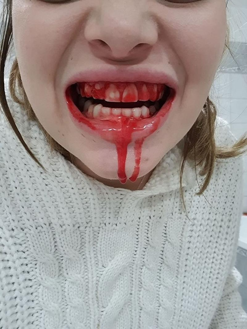 Pic shows: WARNING: GRAPHIC CONTENT Ella's bloody mouth. Beautiful blogger Ella Dvornik has shared a snap of her mouth bleeding profusely to show her army of online followers the down side of pregnancy.