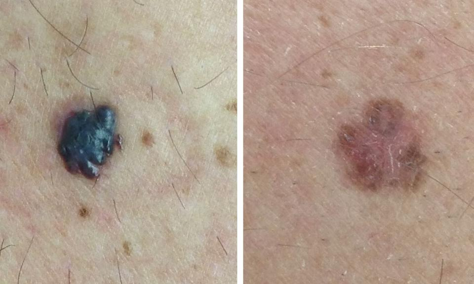 Examples of confirmed melanomas. (Photo: SkinVision)