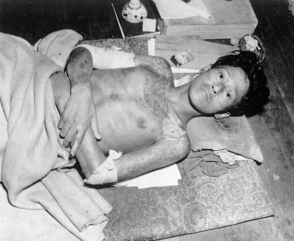 FILE - In this late 1945, file photo, released by Corps of Engineers, a young man, a victim of the second atomic bomb ever used in warfare lies sick on a mat in Nagasaki, Japan. The city of Nagasaki in southern Japan marks the 75th anniversary of the U.S. atomic bombing of Aug. 9, 1945. Japan surrendered on Aug. 15, ending World War II and its nearly a half-century aggression toward Asian neighbors. Dwindling survivors, whose average age exceeds 83, increasingly worry about passing their lessons on to younger generations. (Corps of Engineers via AP, File)