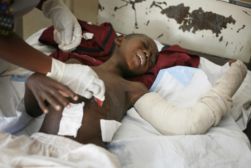 Promess Bitibo, 12,  who was injured by   bullet  wounds  to the abdomen Nov. 19 2012, grimaces as he is being dressed by a nurse at the Heal Africa hospital in Goma Monday Nov. 26, 2012.  Regional leaders meeting in Uganda called for an end to the advance by M23 rebels toward Congo's capital, and also urged the Congolese government to sit down with rebel leaders as residents fled some towns for fear of more fighting between the rebels and army.(AP Photo/Jerome Delay )