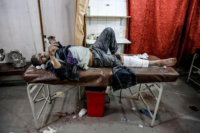<p>A Syrian wounded man waits to receive medical treatment at a hospital after war planes belonging to Assad regime carried out airstrikes over Kfar Batna suburb of Eastern Ghouta in Damascus, Syria on Feb. 6, 2018. (Photo: Khaled Akasha/Anadolu Agency/Getty Images) </p>