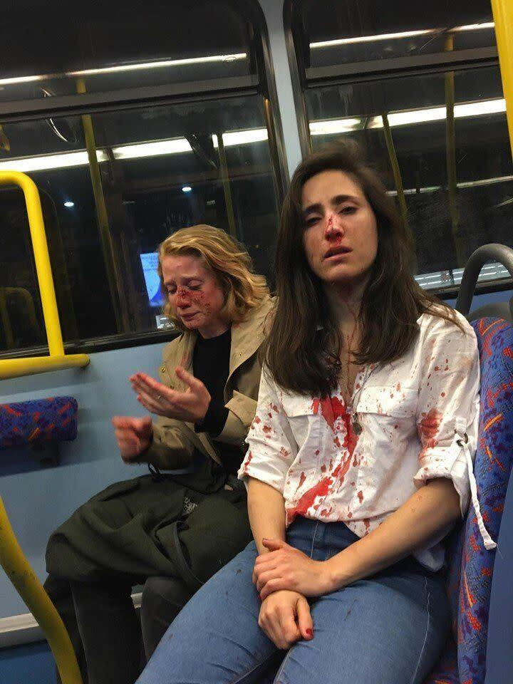 Melania Geymonat shared this photo of her and her date following the May 30 assault on a London bus. Four teenagers have since been charged in the attack. (Photo: Facebook)