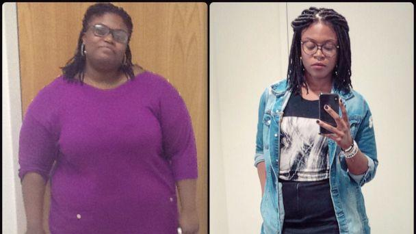 PHOTO: Liz Rock, 30, of Boston, has lost 150 pounds over the past five years. (Liz Rock)