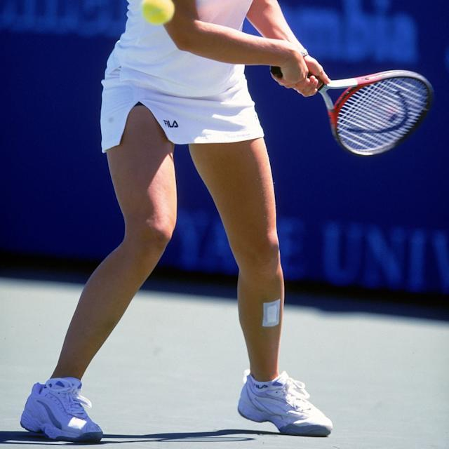 Dokic in 2000 in Connecticut with plasters on her shins - GETTY IMAGES