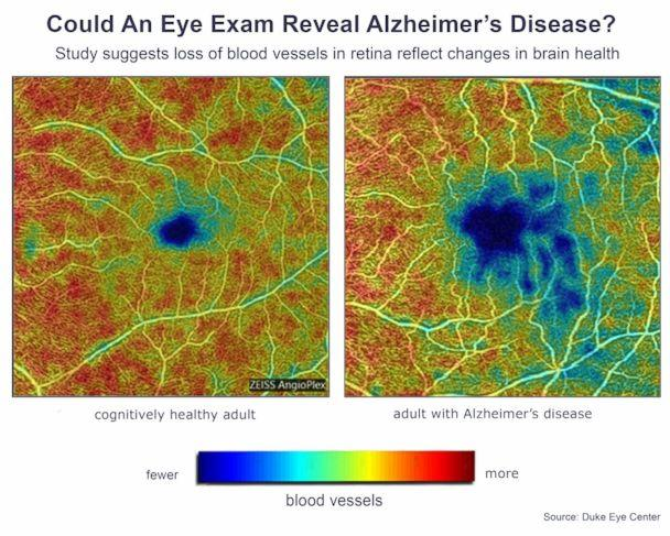 PHOTO: On the left, a photo of the retina of a cognitively health. On the right, a photo of the retina of an adult with Alzheimer's disease. (American Academy of Ophthalmology)