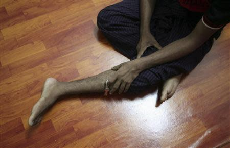Bozor Mohammed from the Rakhine state in Myanmar speaks to a reporter about his leg being injured during an interview at his house in Kuala Lumpur November 8, 2013. REUTERS/Samsul Said