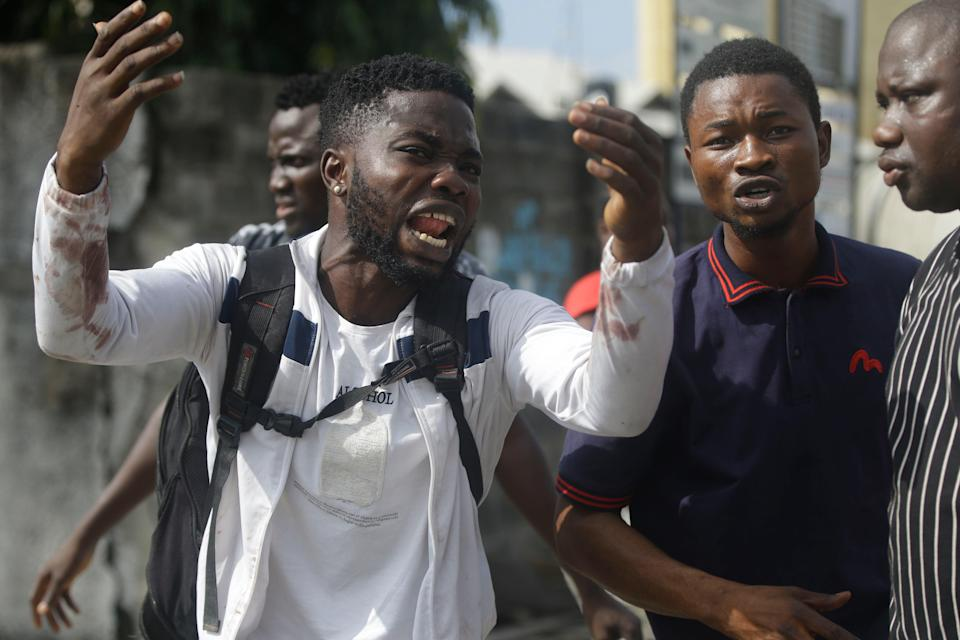 Alister, a protester who says his brother Emeka died from a stray bullet from the army, reacts while speaking to Associated Press near Lekki toll gate in Lagos (AP)