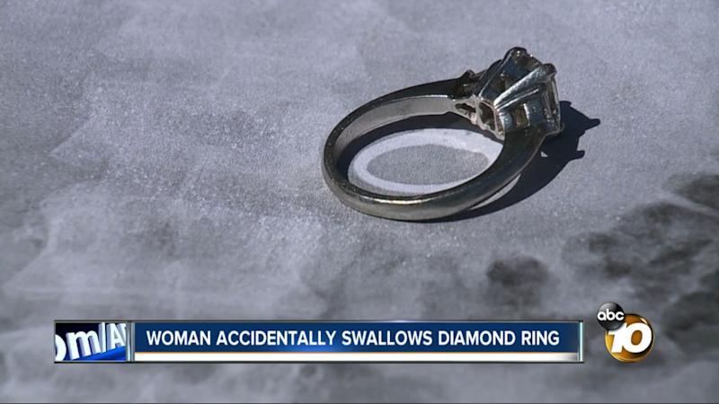 This diamond engagement ring was removed from a California woman's stomach last week after she said she swallowed it while sleepwalking. (Photo: ABC 10)