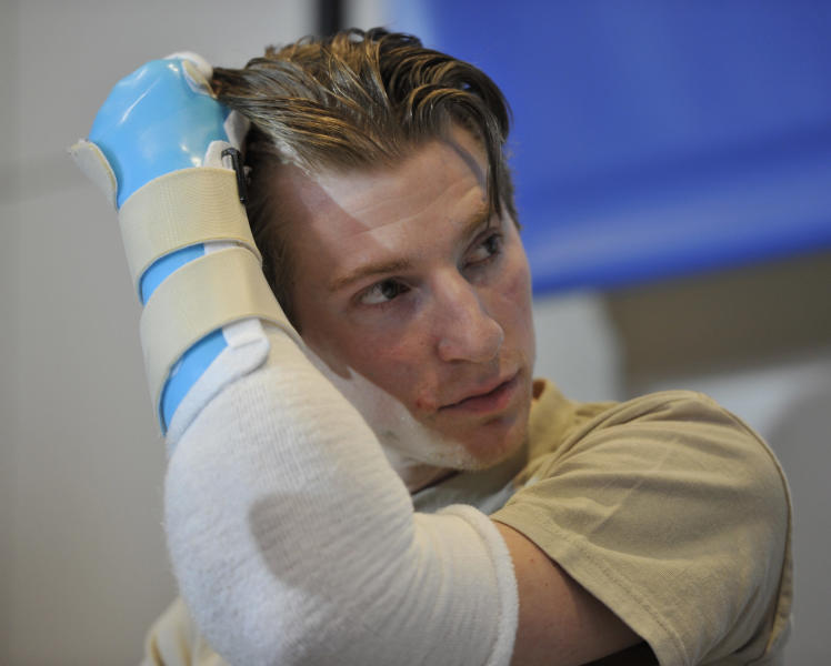 Retired Infantryman Brendan M. Marrocco uses his transplanted arm to brush his hair back during a news conference Tuesday, Jan. 29. 2013 at Johns Hopkins hospital in Baltimore. Marrocco received a transplant of two arms from a deceased donor after losing all four limbs in a 2009 roadside bomb attack in Iraq. (AP Photo/Gail Burton)