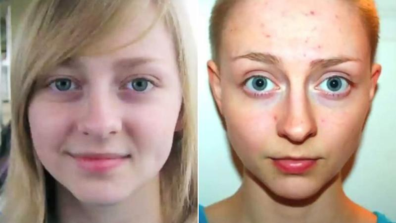 Woman With Hair Loss Condition Captures Transformation in Time Lapse Video