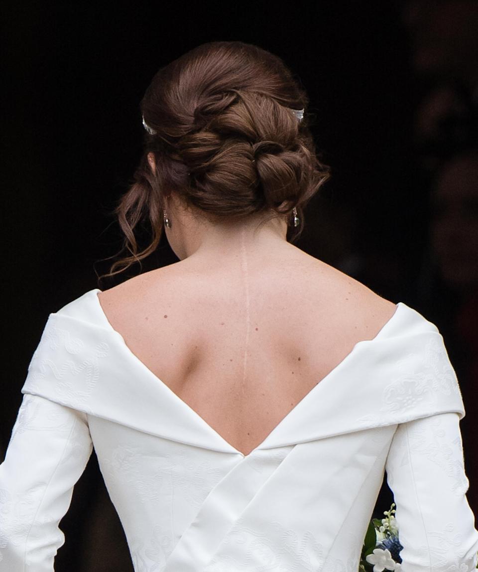 <p>Princess Eugenie proudly shows off her scoliosis scar in her Peter Piloto wedding dress (Getty) </p>