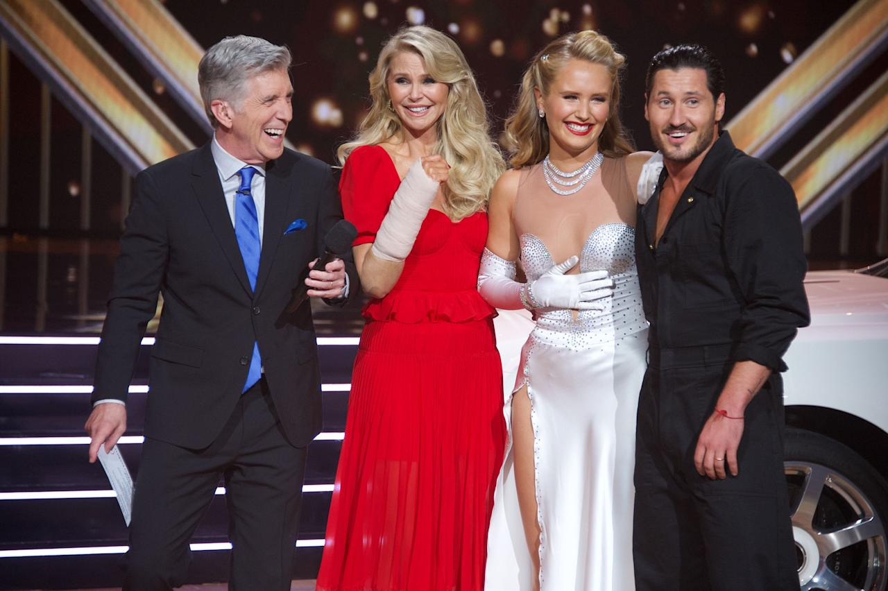 """<p><em>Dancing with the Stars</em> has officially begun its 29th season on ABC. And before the season premiered, there were <em>a lot</em> of changes announced. While we're still early into season 29, one thing we <em>do </em>know for sure is that there will probably be some injuries in the mix. After all, the competition on <em>DWTS </em>is ruthless.</p><p>Here's quick recap of what's going on this season: Back in July, <a href=""""https://www.womenshealthmag.com/beauty/a33649900/tyra-banks-skincare/"""">Tyra Banks</a> was announced as the new host of <em>DWTS</em>, replacing longtime host Tom Bergeron and co-host Erin Andrews. And judge <a href=""""https://www.womenshealthmag.com/life/a34114378/where-is-len-goodman-dancing-with-the-stars/"""">Len Goodman</a>was noticeably absent from the premiere because he can't leave the United Kingdom due to the global COVID-19 pandemic. In his place <a href=""""https://people.com/tv/derek-hough-joins-dancing-with-the-stars-as-judge-len-goodman/"""">is former <em>DWTS</em> pro Derek Hough</a>. </p><p>And of course, we have a brand new cast, with some of the same pros. On <a href=""""https://www.womenshealthmag.com/life/g29589992/dancing-with-the-stars-pros-then-now/"""">the pro side</a> this season is Val Chmerkovskiy, Cheryl Burke, Keo Motsepe, Peta Murgatroyd, Gleb Savchenko, Jenna Johnson, Brandon Armstrong, Emma Slater, Alan Bersten, Sharna Burgess, Pasha Pashkov, Daniella Karagach, Sasha Ferber, and <a href=""""https://www.womenshealthmag.com/life/a33893418/britt-stewart-dancing-with-the-stars/"""">Britt Stewart</a>. </p><p>And on the celebrity side, we have <em>Bachelorette</em> <a href=""""https://www.womenshealthmag.com/fitness/a33561918/kaitlyn-bristowe-workout-dancing-with-the-stars/"""" target=""""_blank"""">Kaitlyn Bristowe</a>, <a href=""""https://www.womenshealthmag.com/fitness/a33992880/monica-aldama-abs-dancing-with-the-stars/"""">Monica Aldama</a> (<em>Cheer</em>), Carole Baskin (<em>Tiger King</em>),  Super Bowl Champion Vernon Davis, actress Anne Heche, ac"""