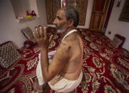 Ghulam Mohideen Sheikh who survived a wild bear attack outside his home shows his injuries at Khimber village in Srinagar, Indian controlled Kashmir, Sunday, Sept. 6, 2020. Amid the long-raging deadly strife in Indian-controlled Kashmir, another conflict is silently taking its toll on the Himalayan region's residents: the conflict between man and wild animals. According to official data, at least 67 people have been killed and 940 others injured in the past five years in attacks by wild animals in the famed Kashmir Valley, a vast collection of alpine forests, connected wetlands and waterways known as much for its idyllic vistas as for its decades-long armed conflict between Indian troops and rebels. (AP Photo/Mukhtar Khan)