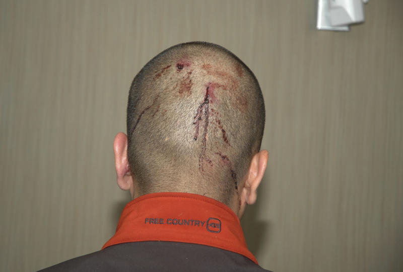 This Feb. 27, 2012 photo released by the State Attorney's Office shows George Zimmerman, the neighborhood†watch volunteer who shot Trayvon Martin, with blood on the back of his head. The photo and reports were among evidence released by prosecutors that also includes calls to police, video and numerous other documents. The package was received by defense lawyers earlier this week and released to the media on Thursday, May 17, 2012. (AP Photo/State Attorney's Office)